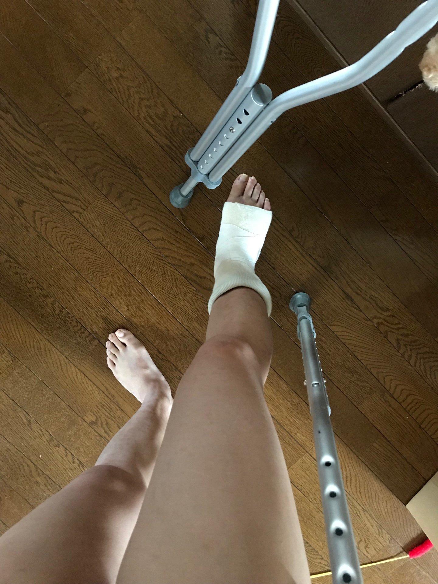 ごぶさたしてます、あしくらです。えーと…右足の甲を骨折してし…